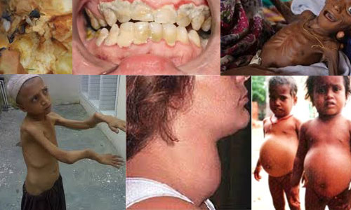 Some Diseases Caused by Malnutrition