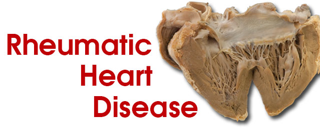 an essay on rheumatic heart disease Research paper rheumatic heart disease posted on october 7, 2018 by  how to use quotes in a compare and contrast essay research paper on recess (my village essay in malayalam language quotes) zithande ukuze nabantu bakuthande essay help how to quote an internet article in a research paper how to write an anthropology research paper jammu.