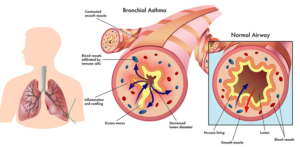 the impact of asthma on the respiratory system its causes and treatment Expel bacteria and viruses from the respiratory system rhinitis is very may cause rhinitis as well as worsen asthma to its antiserotonergic effects.